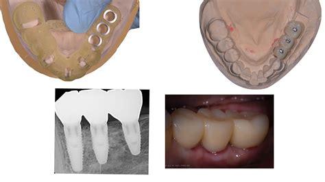 dental implants port jefferson smiles