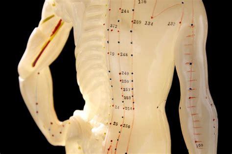 alternative treatments  sciatica acupuncture