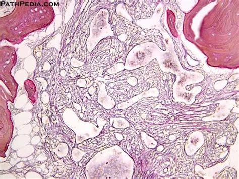 histopathology images  primary idiopathic