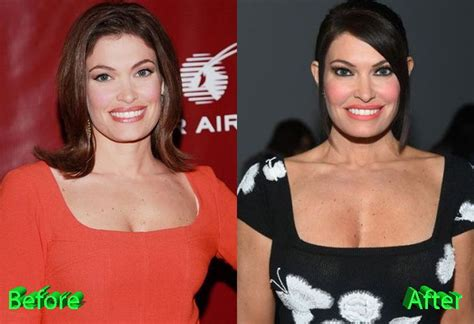 guilfoyle kimberly surgery plastic before after