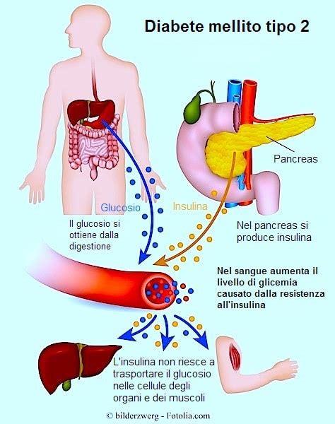 alimentazione diabetici tipo 2 dieta per diabetici tipo 1 e 2 alimenti da mangiare e da