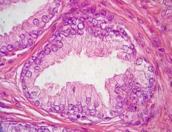 histologia tejido glandular