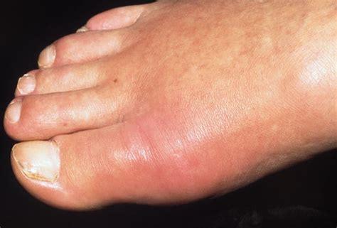 Pijnlijke huid