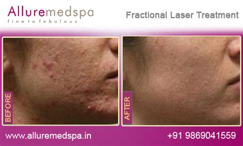fractional co2 laser treatment philippines