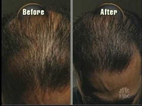 Propecia Shedding 6 Months by Finasteride Results Pictures