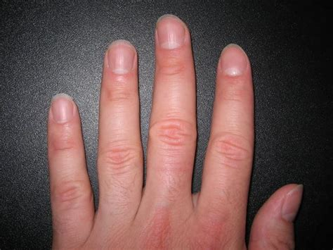 orange fingernails symptoms tips  tricks  doctors