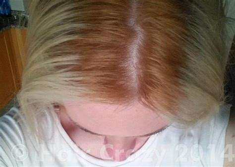 Went To Have My Roots Bleached, Stylist Turned My Hair
