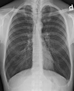 Emphysema  U2013 Undergraduate Diagnostic Imaging Fundamentals
