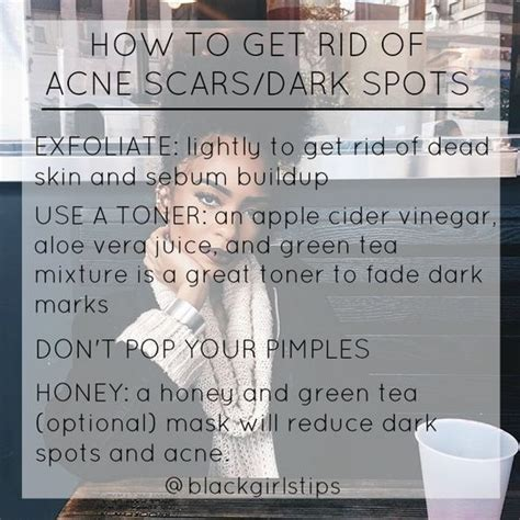 blackgirlstips how to get rid of spots acne scars tip of the day