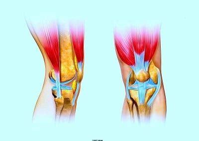 douleur 224 la cuisse droite gauche interne ou externe hanche et sciatique