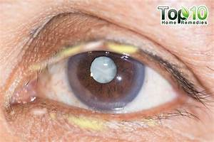 Things Your Eye Gunk Says About Health