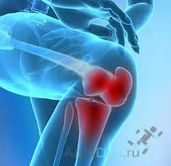 Артроз коленного сустава стандарты лечения