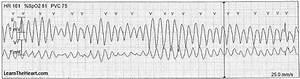 Polymorphic ventricular tachycardia (Torsades de Pointes ...