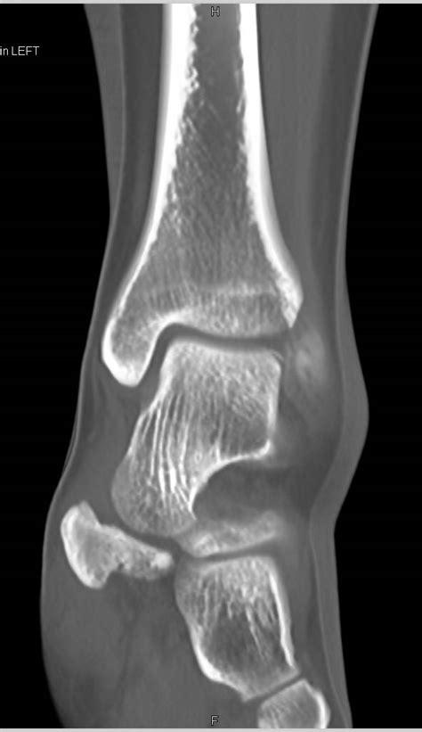Subtle Talar Dome Fracture - Musculoskeletal Case Studies