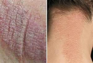 Eczema (Atopic Dermatitis) Causes, Symptoms, Treatment