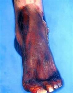 Лекарство от боли в ногах при сахарном диабете лечение