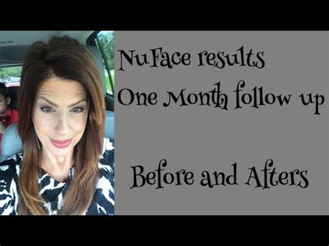 NuFace Review One Month follow up - YouTube