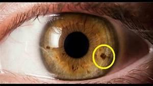 U00bf Tienes Esta Mancha En La Iris Cuidado  Esto Es Lo Que