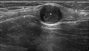 Musculoskeletal Ultrasound | Radiology Key