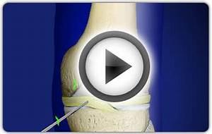 Боли в ногах в коленном суставе лечение