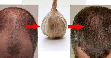 garlic     natural treatment  hair