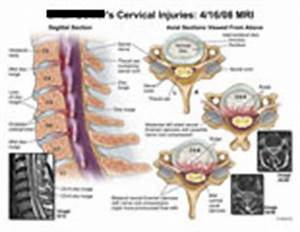 AMICUS Illustration of amicus,injury,cervical,mri,neural ...