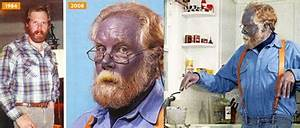 The Dangers of Colloidal Silver | Great Ape Thoughts