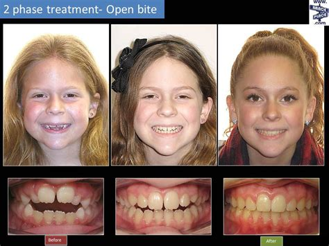 Twophase Treatment  Brace Place Orthodontics  Freehold. Cost Of Medical Assistant Certification. Online Colleges Courses Am Plumbing Denton Tx. Home Insurance Quotes Ct Sere Online Training. Payroll Services Reviews For Small Business. Affordable Cable Tv And Internet. Jacksonville Tree Removal At&t Bundling Plans. Texas Personal Injury Attorneys. Banks That Let You Open An Account Online