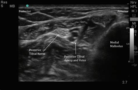 Ultrasound Guided Posterior Tibial Nerve Block and Foreign ...