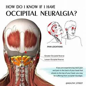 Occipital Neuralgia - The Neck  Head Pain