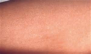 Common Viral Skin Rashes Face