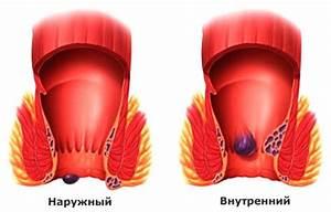 Свечи от геморроя синтомицин