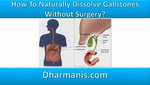 How To Naturally Dissolve Gallstones Without Surgery?