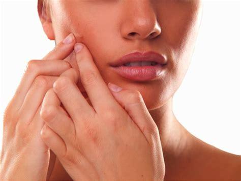 Pimples Gone Fast Trusper