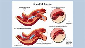 Sickle cell disease | theindependentbd.com