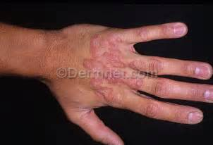 Tinea (Ringworm) <b>Hand</b> Dorsum Photo
