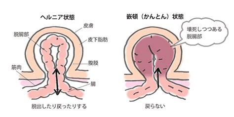 腸閉塞 なり かけ の 症状