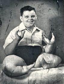 Grady Stiles Lobster Boy   European American Freak Show ...