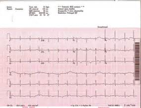 qt interval doctor answers