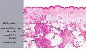 Erythema Nodosum = الحمامى العقدة
