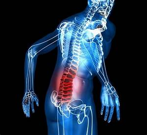 Lumbar Spinal Stenosis Starter Kit