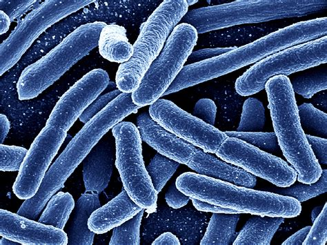 E-coli Infection Photos And Images