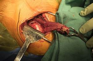 Inside the OR: Stabilizing a chronically dislocated ...  Shoulder Pain Bone tumors