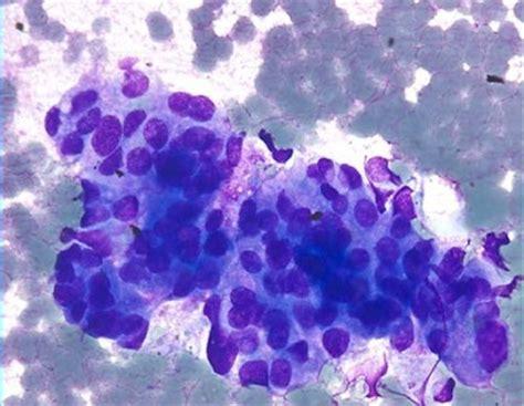 images  cytology  pinterest