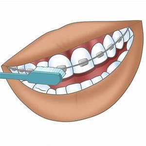 Dents Qui Se Déchaussent Photos : bien se laver les dents avec un appareil orthodontique appareil dentaire ~ Medecine-chirurgie-esthetiques.com Avis de Voitures
