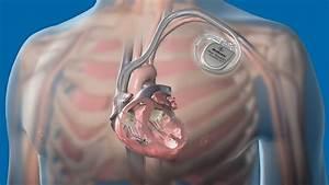 Advances in Implantable Cardioverter Defibrillator (ICD ...