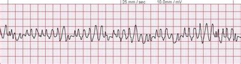 lmh ed technician cardiac rhythm quiz proprofs quiz