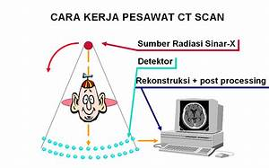 Radiation Is My Friend  Computed Tomography Scanning  Ct Scan