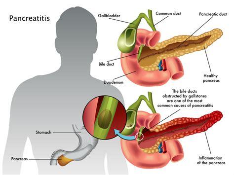 Pancreatitis Pain Illustration