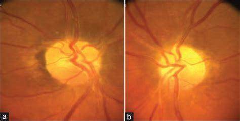 Bilateral Simultaneous Nonarteritic Anterior Ischemic